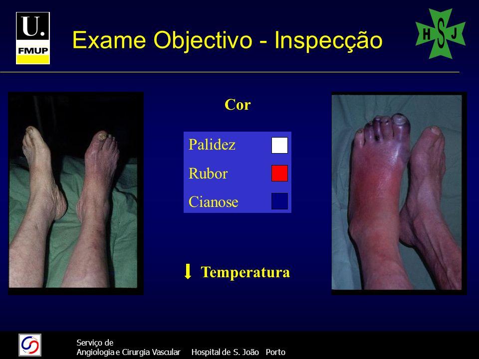 666 Serviço de Angiologia e Cirurgia Vascular Hospital de S. João Porto Exame Objectivo - Inspecção Cor Palidez Rubor Cianose Temperatura