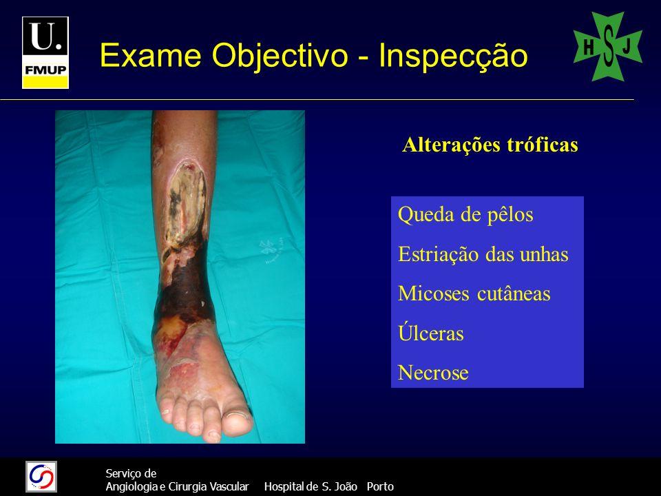 777 Serviço de Angiologia e Cirurgia Vascular Hospital de S. João Porto Exame Objectivo - Inspecção Alterações tróficas Queda de pêlos Estriação das u