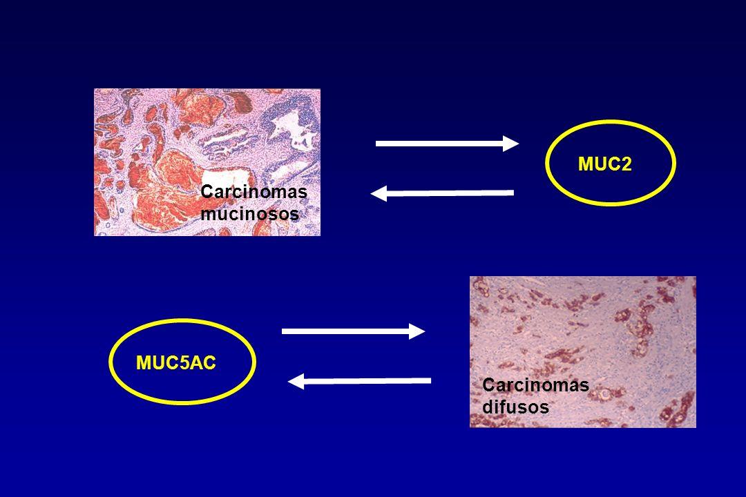 Carcinomas mucinosos MUC5AC Carcinomas difusos