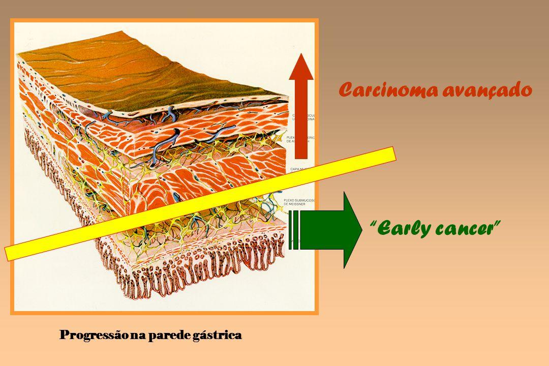 Carcinoma avançado Early cancer Progressão na parede gástrica