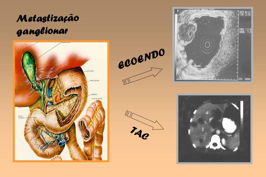TAC ECOENDO Metastização ganglionar