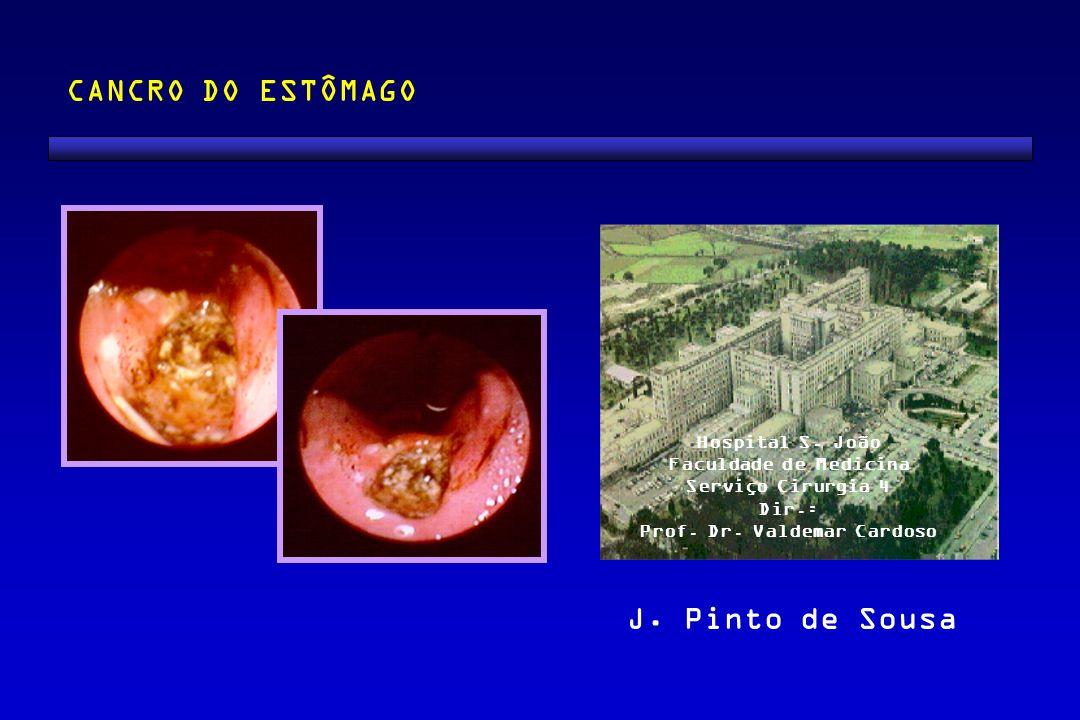J. Pinto de Sousa CANCRO DO ESTÔMAGO Hospital S. João Faculdade de Medicina Serviço Cirurgia 4 Dir.: Prof. Dr. Valdemar Cardoso