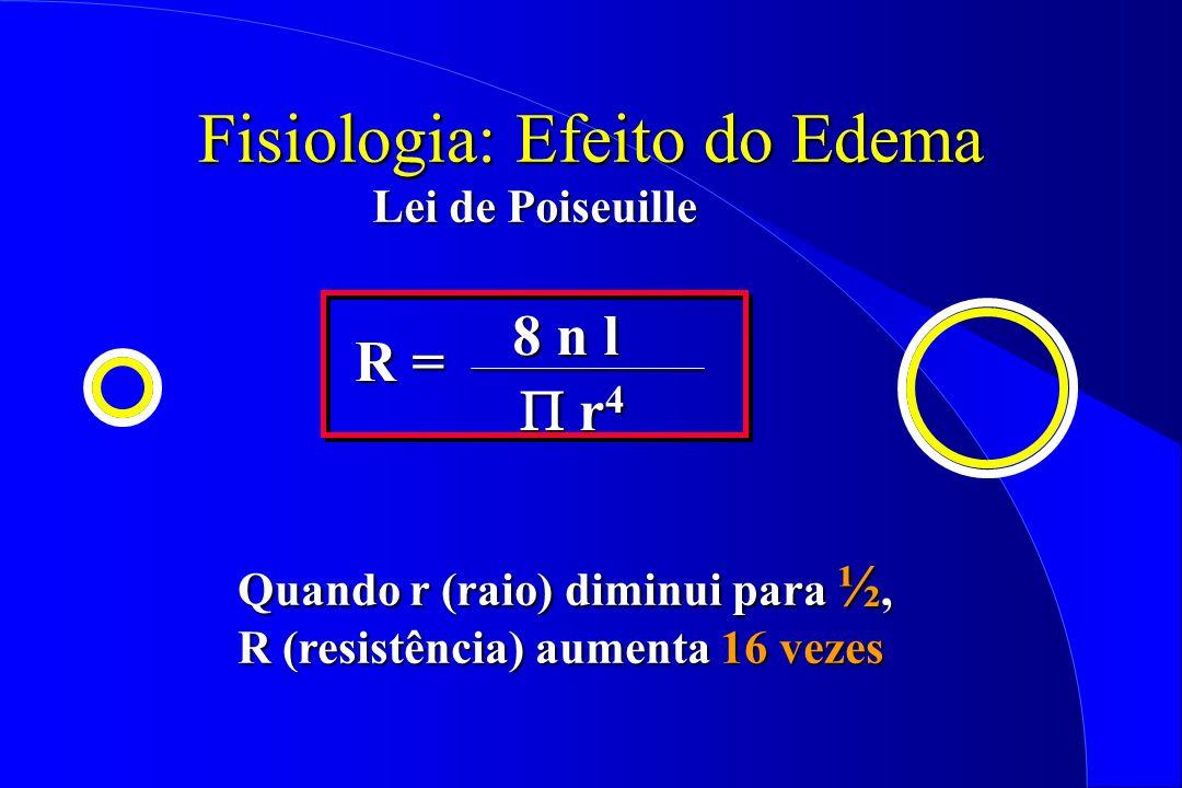 Fisiologia: Efeito do Edema Lei de Poiseuille Quando r (raio) diminui para ½, R (resistência) aumenta 16 vezes R = 8 n l r 4 r 4