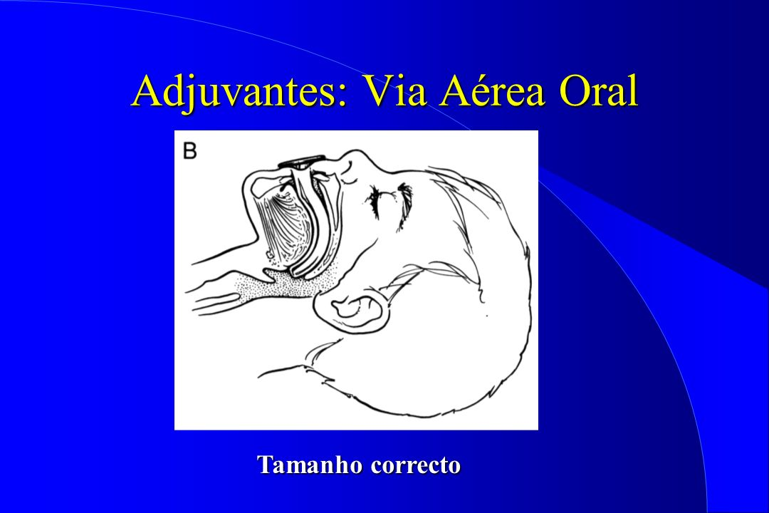Tamanho correcto Adjuvantes: Via Aérea Oral