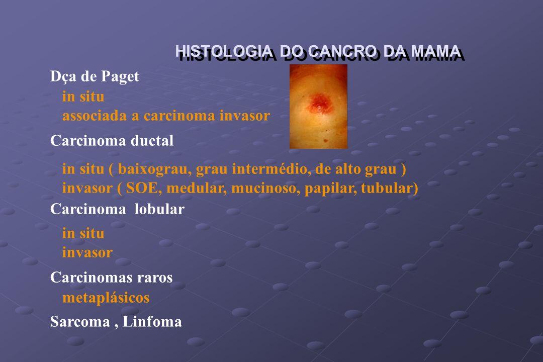 HISTOLOGIA DO CANCRO DA MAMA Dça de Paget Carcinoma ductal Carcinoma lobular Carcinomas raros Sarcoma, Linfoma in situ associada a carcinoma invasor i