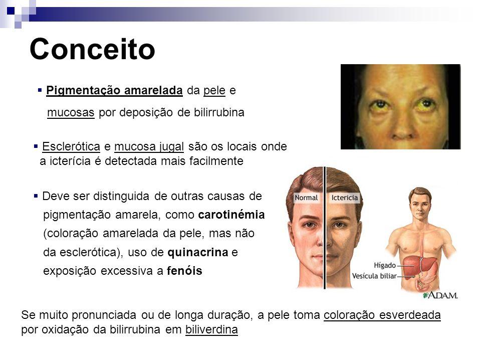 Concentração de Bilirrubina Normal Hiperbilirrubinemia 0,3 mg/dl 1,0 mg/dl 2,25 mg/dl Icterícia Valor variável