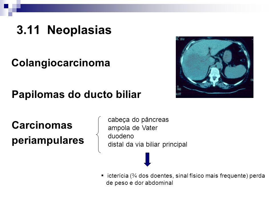 3.11 Neoplasias Colangiocarcinoma Papilomas do ducto biliar Carcinomas periampulares cabeça do pâncreas ampola de Vater duodeno distal da via biliar p