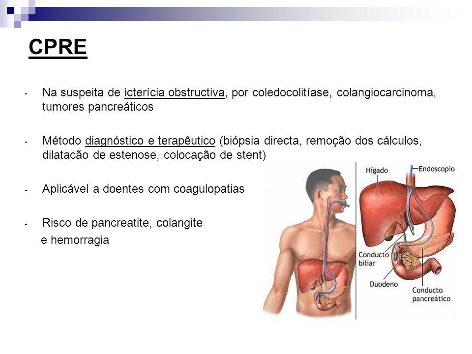 CPRE - Na suspeita de icterícia obstructiva, por coledocolitíase, colangiocarcinoma, tumores pancreáticos - Método diagnóstico e terapêutico (biópsia
