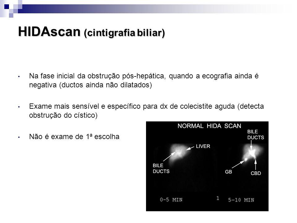 HIDAscan (cintigrafia biliar) Na fase inicial da obstrução pós-hepática, quando a ecografia ainda é negativa (ductos ainda não dilatados) Exame mais s