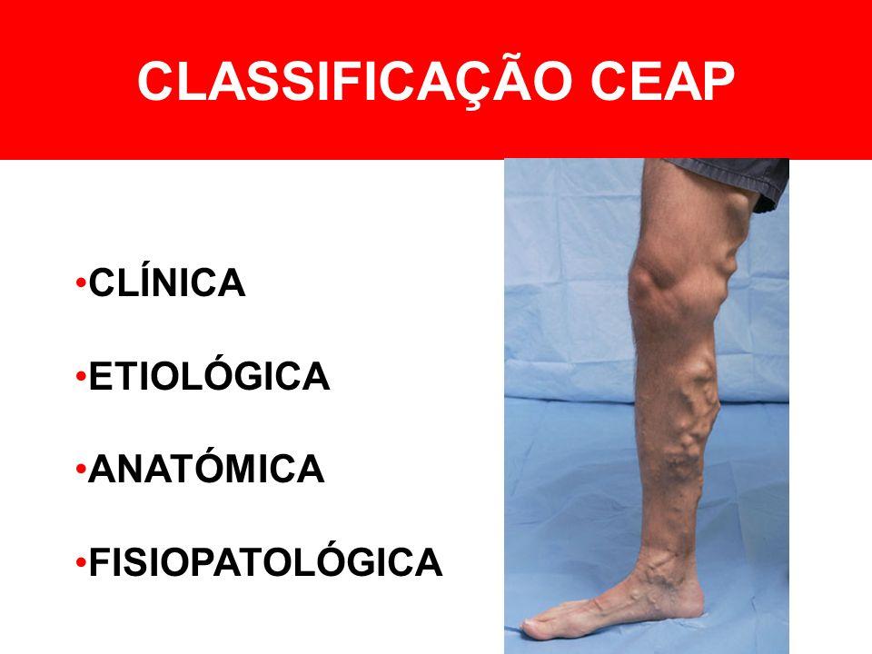 CLASSIFICAÇÃO CLÍNICA 0Sem sinais 1Varizes reticulares / telangiectásicas 2Varizes tronculares 3Edema 4Alterações tróficas 5Úlcera cicatrizada 6Úlcera activa AAssintomático SSintomático