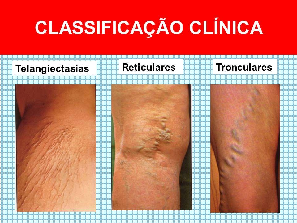 CLASSIFICAÇÃO CLÍNICA Telangiectasias ReticularesTronculares