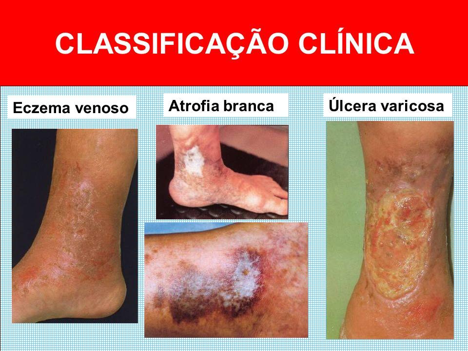 COMPLICAÇÕES Varicoflebite VaricorragiaFlebotrombose