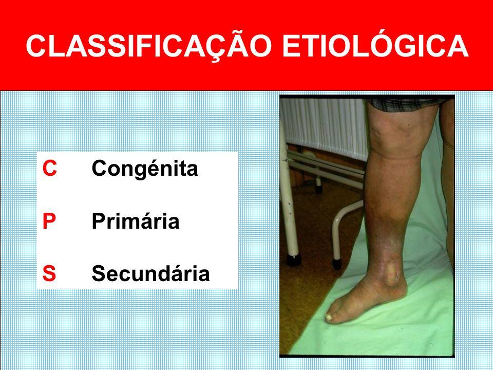 CLASSIFICAÇÃO ETIOLÓGICA CCongénita PPrimária SSecundária