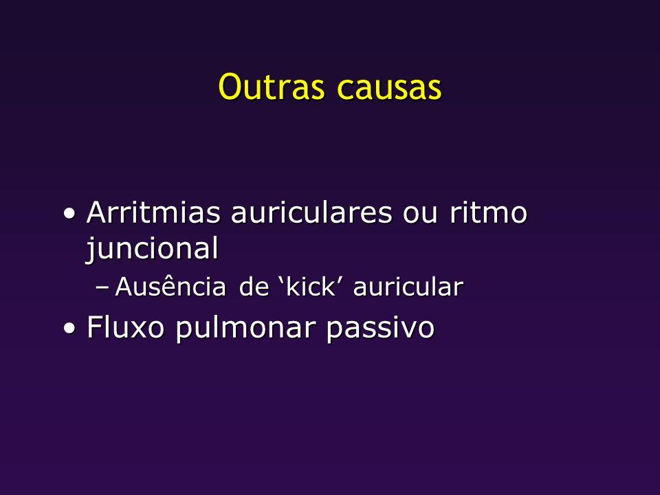 Outras causas Arritmias auriculares ou ritmo juncionalArritmias auriculares ou ritmo juncional –Ausência de kick auricular Fluxo pulmonar passivoFluxo