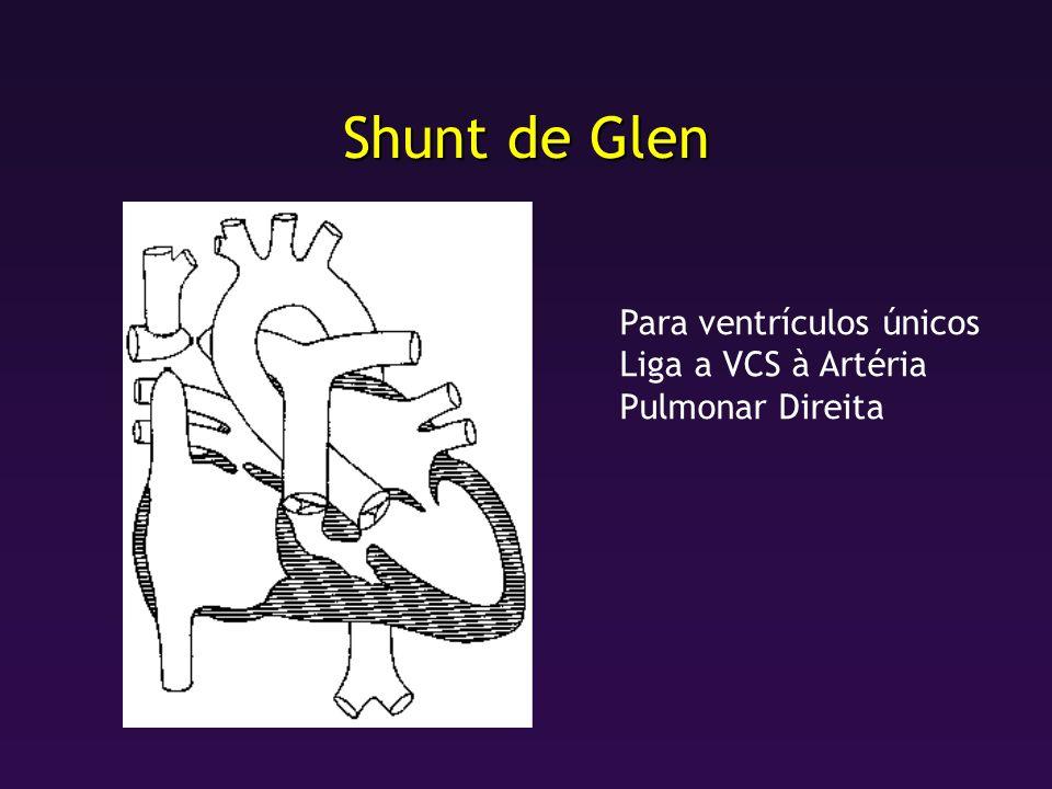 Shunt de Glen Para ventrículos únicos Liga a VCS à Artéria Pulmonar Direita