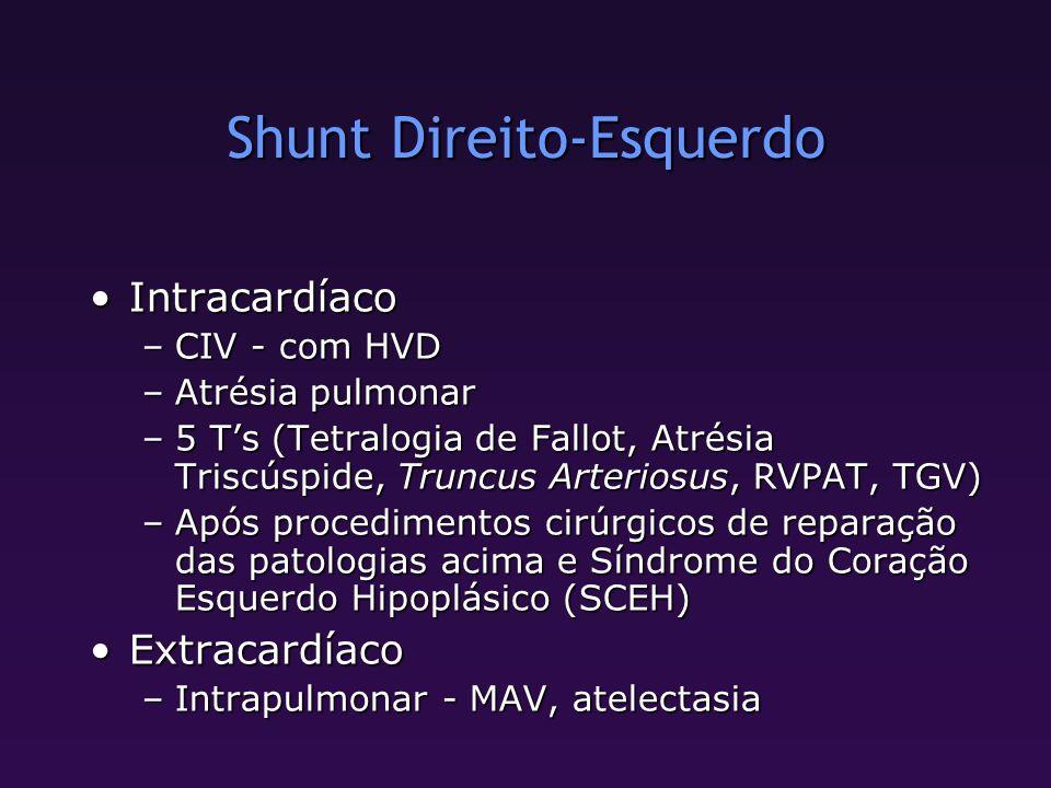 Shunt Direito-Esquerdo IntracardíacoIntracardíaco –CIV - com HVD –Atrésia pulmonar –5 Ts (Tetralogia de Fallot, Atrésia Triscúspide, Truncus Arteriosu