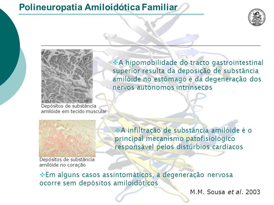 Polineuropatia Amiloidótica Familiar A hipomobilidade do tracto gastrointestinal superior resulta da deposição de substância amilóide no estômago e da degeneração dos nervos autónomos intrínsecos Em alguns casos assintomáticos, a degeneração nervosa ocorre sem depósitos amiloidóticos Depósitos de substância amilóide em tecido muscular M.M.