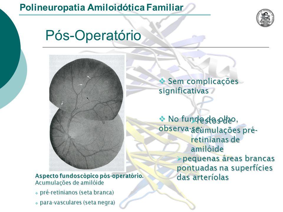 Polineuropatia Amiloidótica Familiar Pós-Operatório Aspecto fundoscópico pós-operatório.