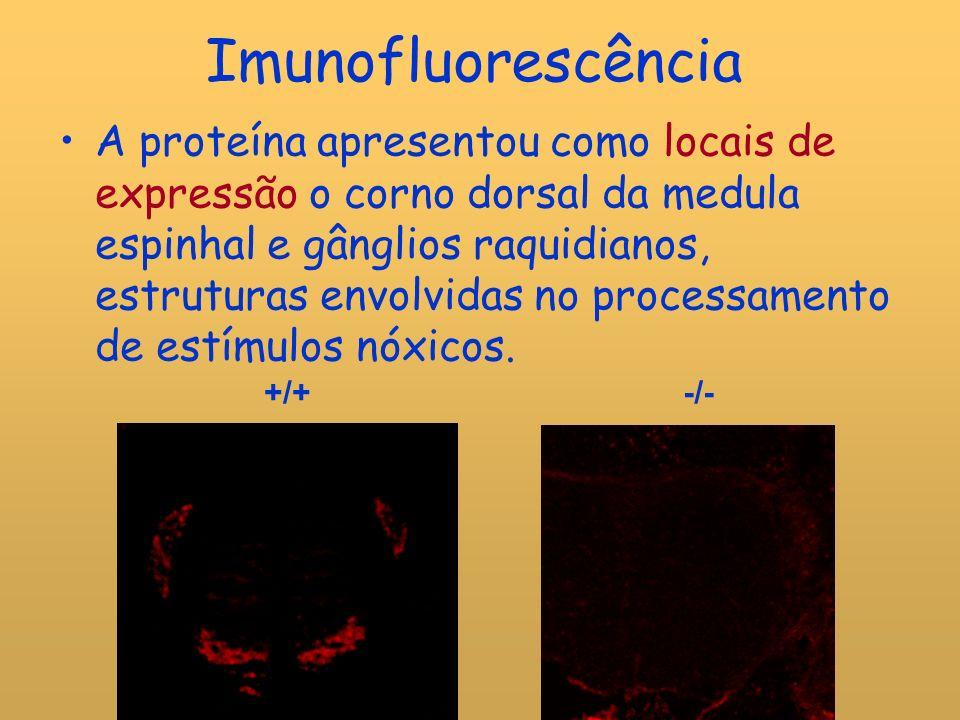 Imunofluorescência A proteína apresentou como locais de expressão o corno dorsal da medula espinhal e gânglios raquidianos, estruturas envolvidas no processamento de estímulos nóxicos.