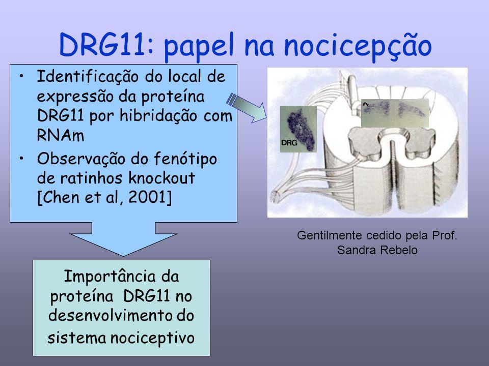 DRG11: papel na nocicepção Identificação do local de expressão da proteína DRG11 por hibridação com RNAm Observação do fenótipo de ratinhos knockout [Chen et al, 2001] Importância da proteína DRG11 no desenvolvimento do sistema nociceptivo Gentilmente cedido pela Prof.