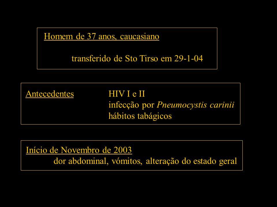 Homem de 37 anos, caucasiano transferido de Sto Tirso em 29-1-04 AntecedentesHIV I e II infecção por Pneumocystis carinii hábitos tabágicos Início de
