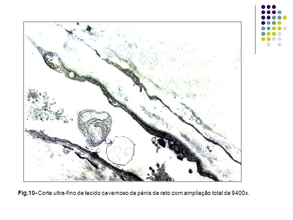 Fig.10- Corte ultra-fino de tecido cavernoso de pénis de rato com ampliação total de 9400x.