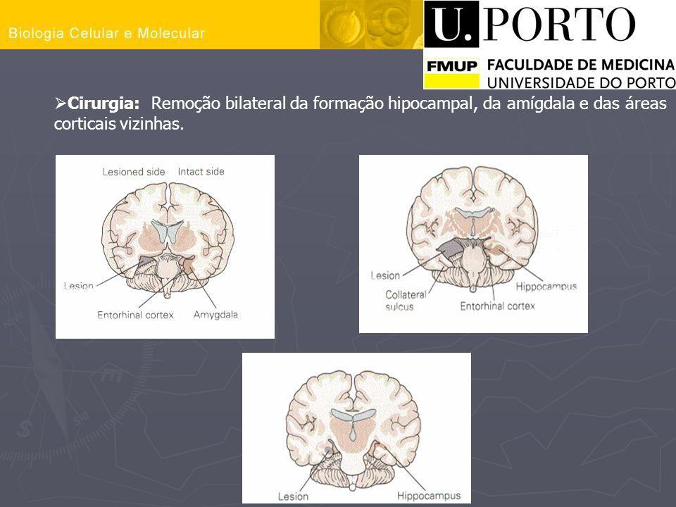 Cirurgia: Remoção bilateral da formação hipocampal, da amígdala e das áreas corticais vizinhas.