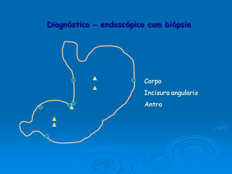 Gastrite crónica atrófica Diagnóstico Cromoendoscopia – estudo da mucosa gástrica.