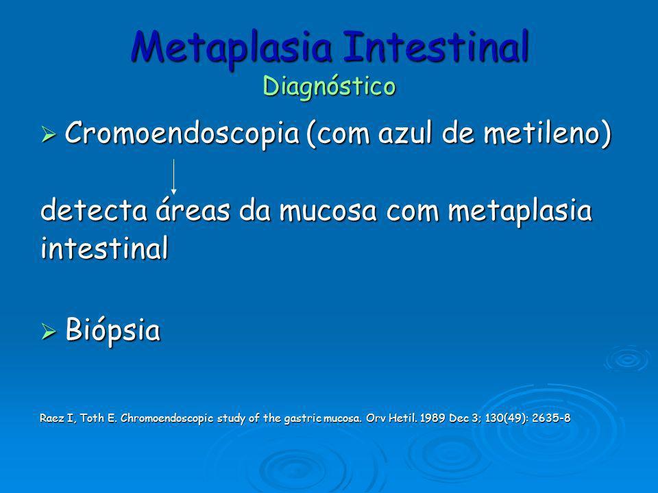Metaplasia Intestinal Diagnóstico Cromoendoscopia (com azul de metileno) Cromoendoscopia (com azul de metileno) detecta áreas da mucosa com metaplasia
