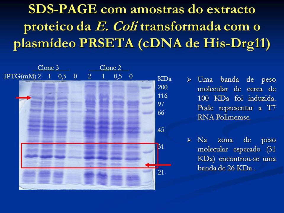 SDS-PAGE com amostras do extracto proteico da E. Coli transformada com o plasmídeo PRSETA (cDNA de His-Drg11) Clone 3 Clone 2 IPTG(mM) 2 1 0,5 0 2 1 0