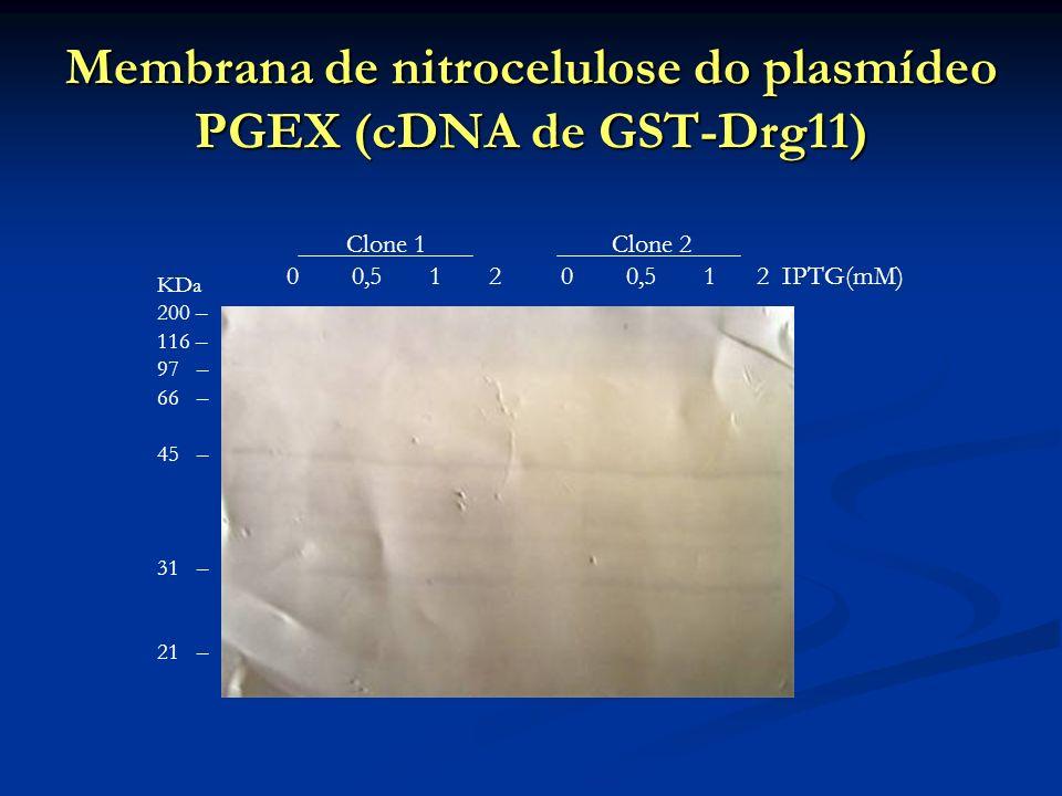 Membrana de nitrocelulose do plasmídeo PGEX (cDNA de GST-Drg11) Clone 1 Clone 2 0 0,5 1 2 0 0,5 1 2 IPTG(mM) KDa 200 – 116 – 97 – 66 – 45 – 31 – 21 –