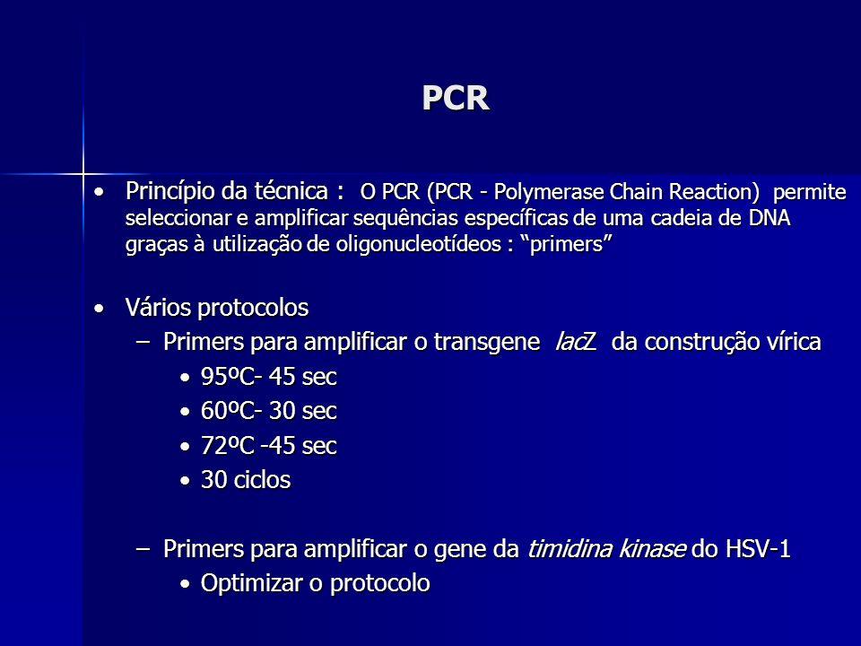 PCR Princípio da técnica : O PCR (PCR - Polymerase Chain Reaction) permite seleccionar e amplificar sequências específicas de uma cadeia de DNA graças