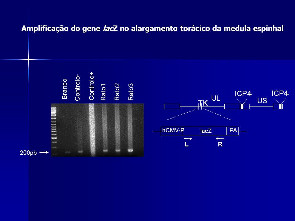 ICP4 TK UL US hCMV-PPA lacZ ICP4 LR Amplificação do gene lacZ no alargamento torácico da medula espinhal Branco Controlo- Controlo+ Rato1Rato2 Rato3 2