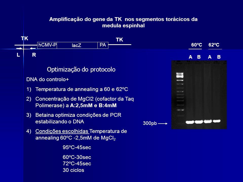 Amplificação do gene da TK nos segmentos torácicos da medula espinhal hCMV-PPA lacZ TK LR 300pb A Optimização do protocolo DNA do controlo+ 1)Temperat