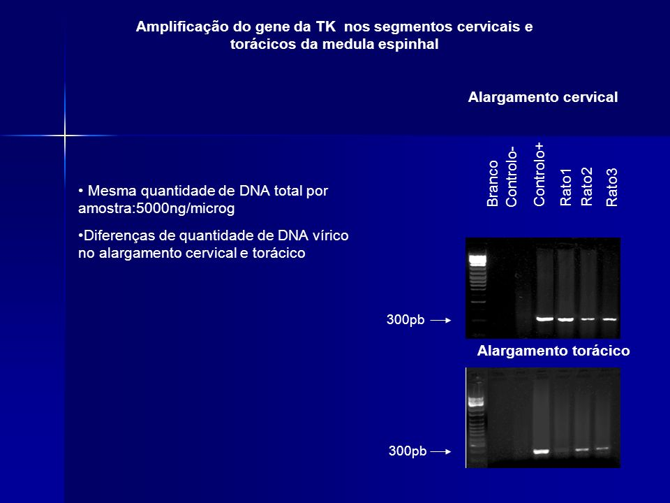 300pb Branco Controlo- Controlo+ Rato1Rato2 Rato3 300pb Amplificação do gene da TK nos segmentos cervicais e torácicos da medula espinhal Alargamento