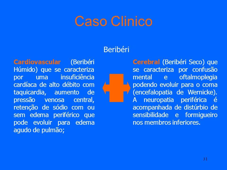 30 Caso Clinico Beribéri Insuficiência de Tiamina Vitamina B 1 Afecta Coração Sistema Nervoso Central