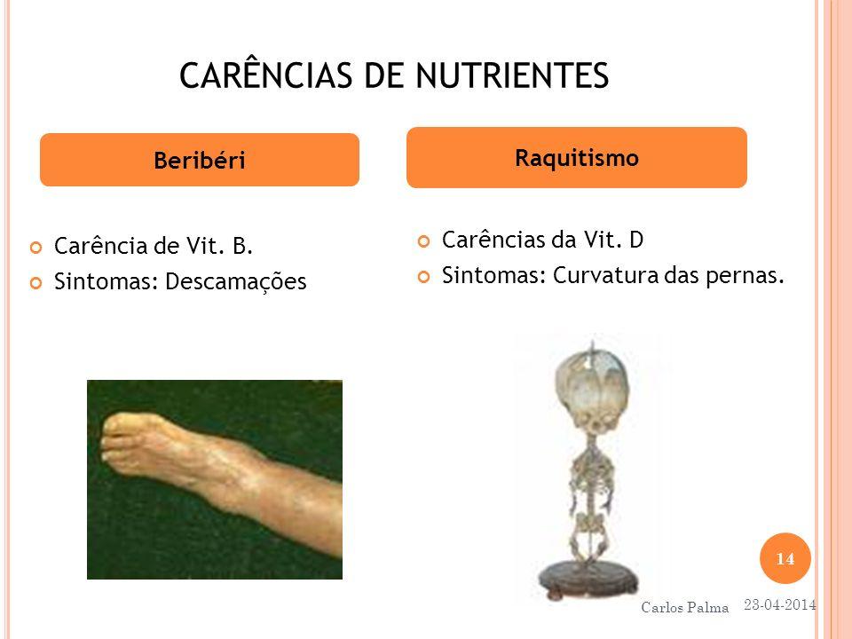 CARÊNCIAS DE NUTRIENTES Carência de Vit. B. Sintomas: Descamações Beribéri Raquitismo Carências da Vit. D Sintomas: Curvatura das pernas. 23-04-2014 1