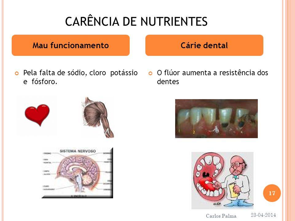 CARÊNCIA DE NUTRIENTES Pela falta de sódio, cloro potássio e fósforo. O flúor aumenta a resistência dos dentes Mau funcionamentoCárie dental 23-04-201