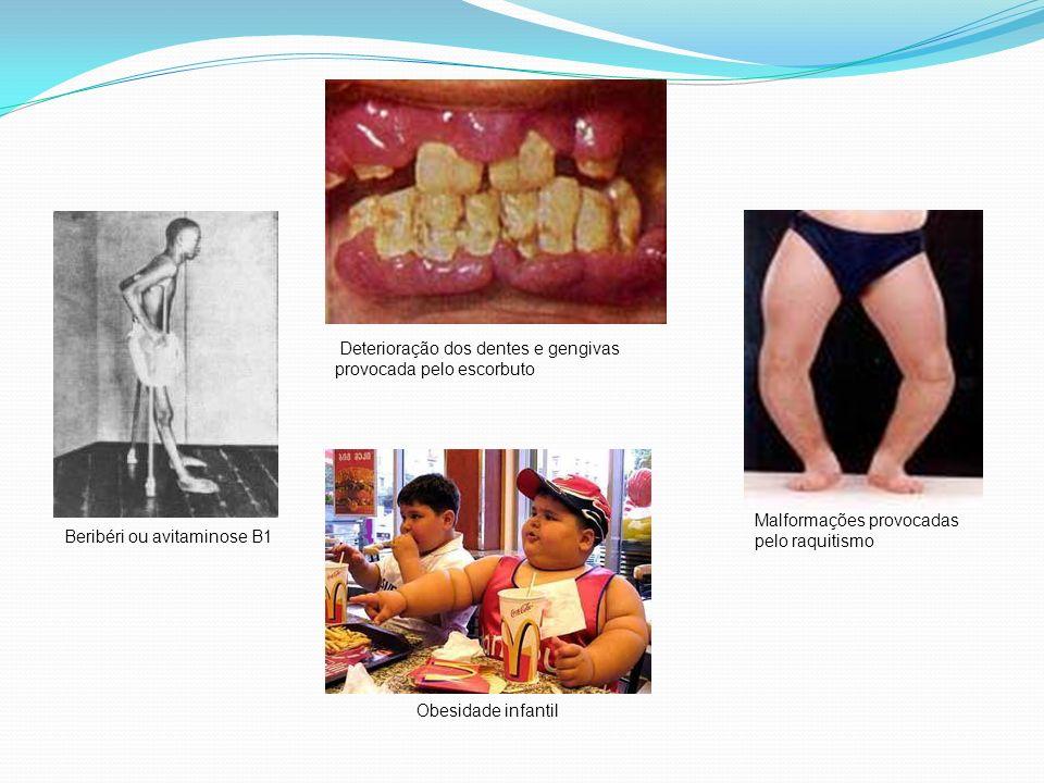 Beribéri ou avitaminose B1 Deterioração dos dentes e gengivas provocada pelo escorbuto Obesidade infantil Malformações provocadas pelo raquitismo