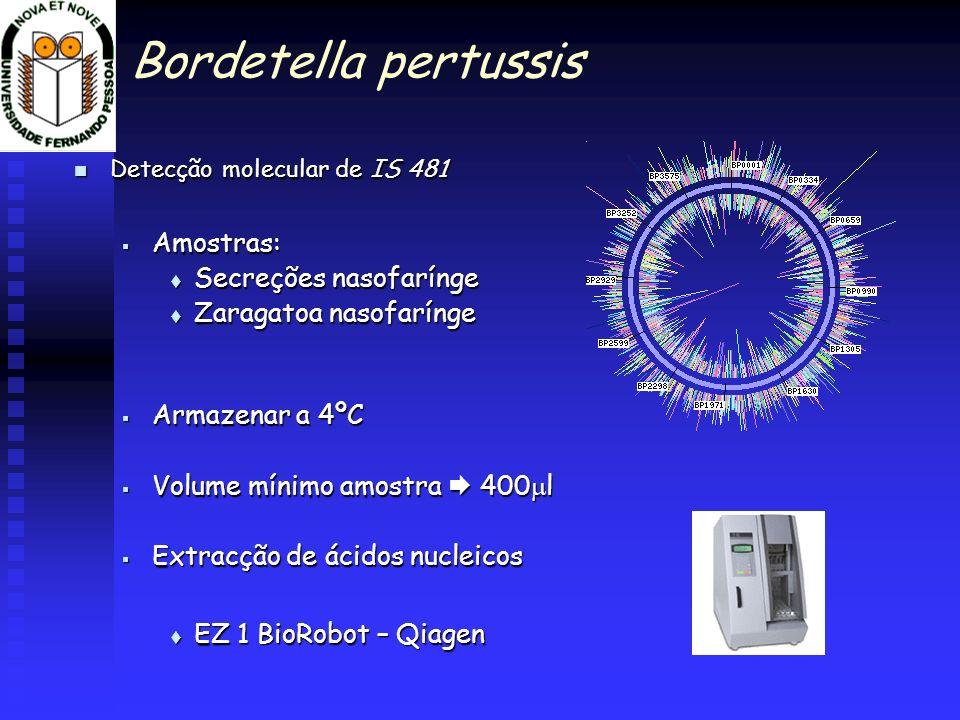 Bordetella pertussis Detecção molecular de IS 481 Detecção molecular de IS 481 Amostras: Amostras: Secreções nasofarínge Secreções nasofarínge Zaragat