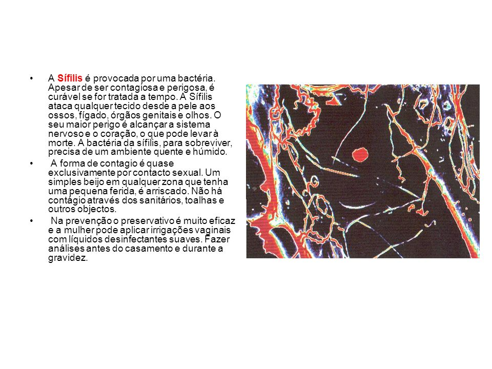 A Sífilis é provocada por uma bactéria. Apesar de ser contagiosa e perigosa, é curável se for tratada a tempo. A Sífilis ataca qualquer tecido desde a