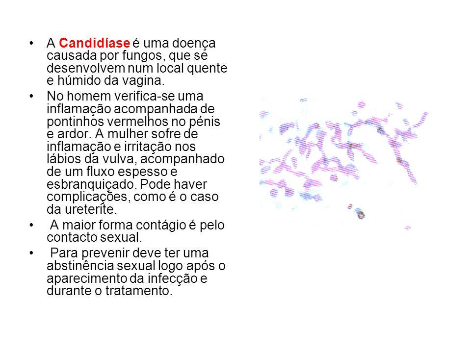 A Candidíase é uma doença causada por fungos, que se desenvolvem num local quente e húmido da vagina. No homem verifica-se uma inflamação acompanhada