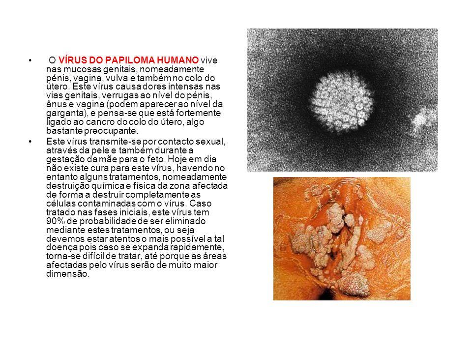 O VÍRUS DO PAPILOMA HUMANO vive nas mucosas genitais, nomeadamente pénis, vagina, vulva e também no colo do útero. Este vírus causa dores intensas nas