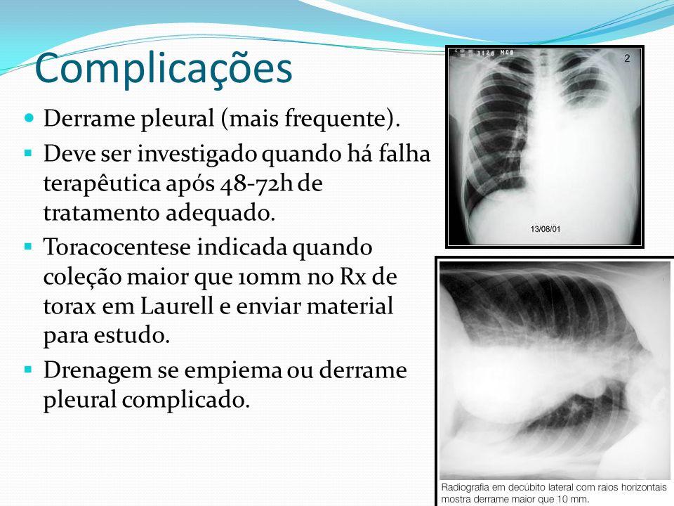 Complicações Derrame pleural (mais frequente). Deve ser investigado quando há falha terapêutica após 48-72h de tratamento adequado. Toracocentese indi