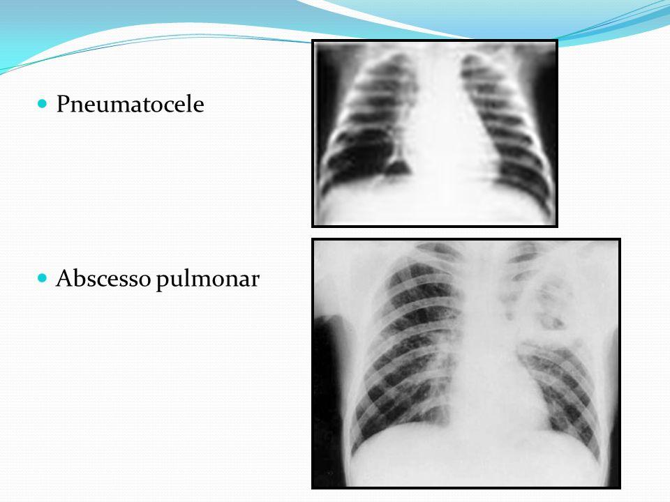 Pneumatocele Abscesso pulmonar