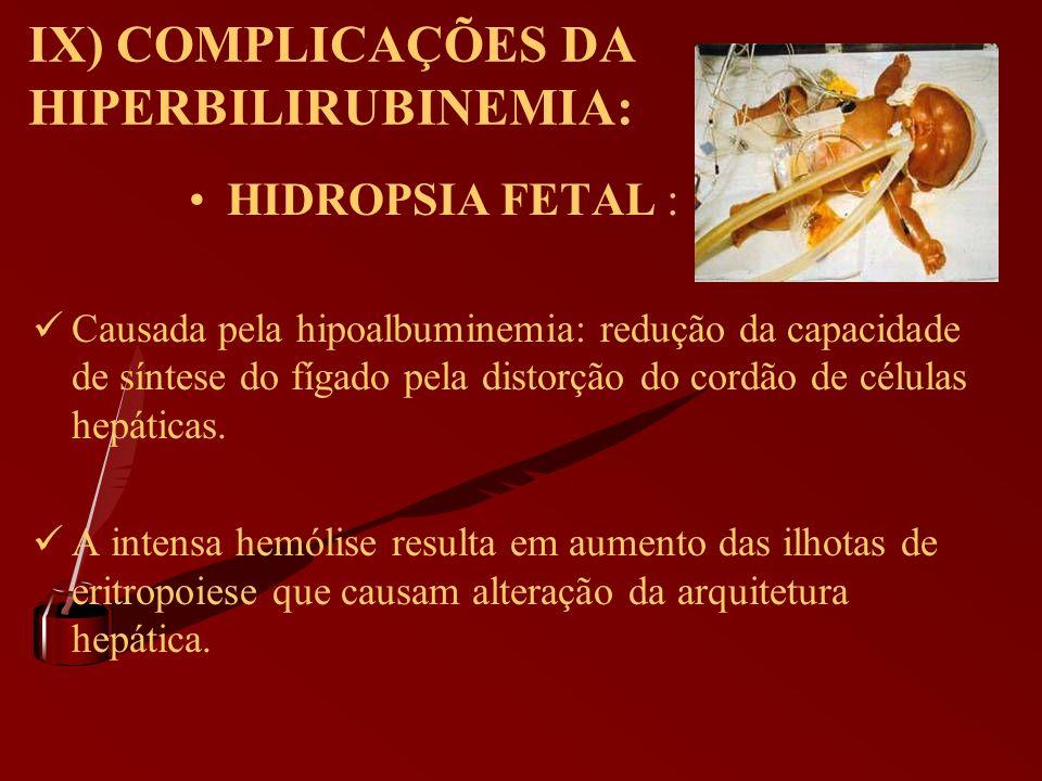 IX) COMPLICAÇÕES DA HIPERBILIRUBINEMIA: HIDROPSIA FETAL : Causada pela hipoalbuminemia: redução da capacidade de síntese do fígado pela distorção do c