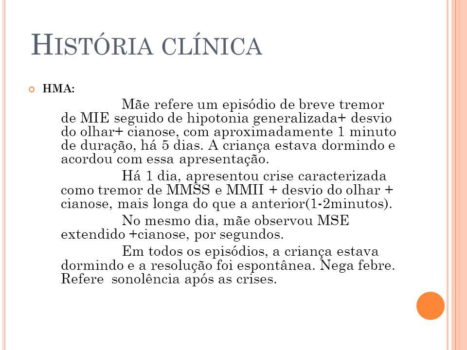 H ISTÓRIA CLÍNICA HMA: Mãe refere um episódio de breve tremor de MIE seguido de hipotonia generalizada+ desvio do olhar+ cianose, com aproximadamente
