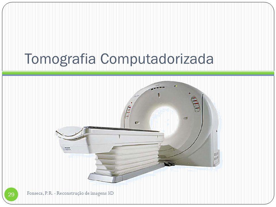 Tomografia Computadorizada Fonseca, P.R. - Reconstrução de imagens 3D 29