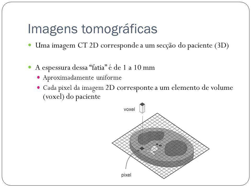 Imagens tomográficas Uma imagem CT 2D corresponde a um secção do paciente (3D) A espessura dessa fatia é de 1 a 10 mm Aproximadamente uniforme Cada pixel da imagem 2D corresponte a um elemento de volume (voxel) do paciente