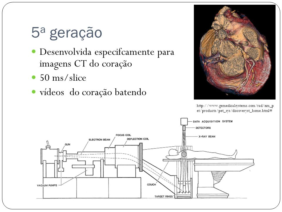5 a geração Desenvolvida especifcamente para imagens CT do coração 50 ms/slice vídeos do coração batendo http://www.gemedicalsystems.com/rad/nm_p et/products/pet_sys/discoveryst_home.html#